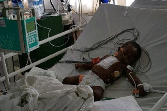 First Open Heart Surgeries  Carried Out Successfully In Oauthc
